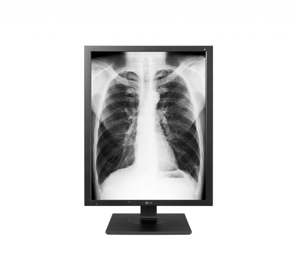 A front view of the LG Diagnostic Monitor model 21HK512D displaying an X-ray of a person's chest.